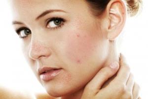 Đông y hỗ trợ điều trị bệnh ngoài da