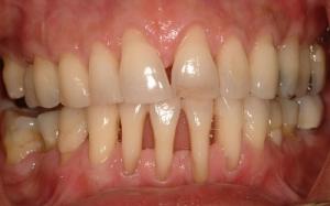 Viêm quanh răng - Nha chu viêm và hỗ trợ điều trị