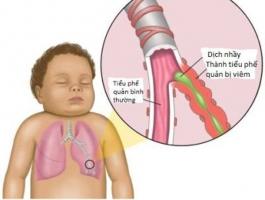 Dấu hiệu sớm cảnh báo bệnh viêm phế quản người bệnh không nên chủ quan