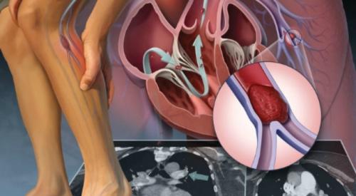 Các yếu tố thuận lợi của bệnh viêm tắc tĩnh mạch
