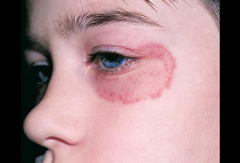 Hắc lào - bệnh ngoài da cần điều trị ngay, tránh lây nan